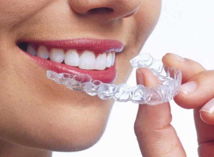 Find And Use Discounts To Have Necessary Dental Care And Live Healthily