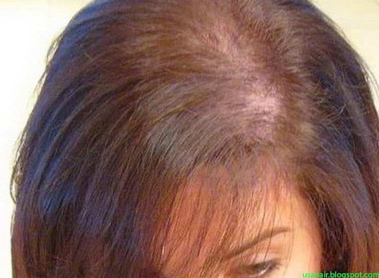 Hair Loss in Men & Women – Find Out the Difference Between Hair Loss For Men and Women